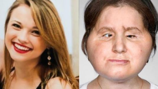 Suicide survivor gets second life with a new face. Watch viral video